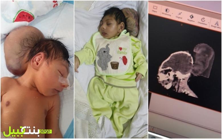 """""""وطن"""" إبن الـ 40 يوماً حالته إلى الاسوأ... وُلد بفتق دماغي ووالده يناشد مجدداً مساعدته وإيجاد طبيب لإجراء عملية جراحية لنجله"""