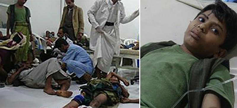 مجزرة تستهدف سوقاً شعبياً في محافظة صعدة اليمنية والحصيلة الأولية 13 ضحية و23 جريحاً