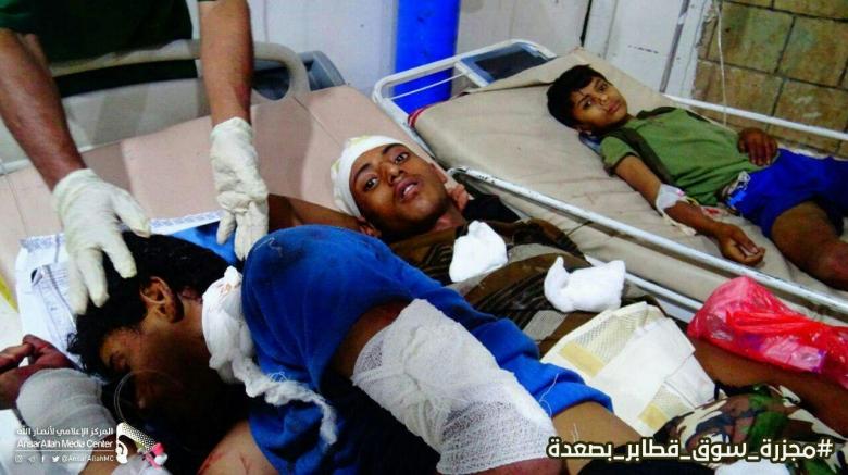 ارتفاع عدد شهداء مجزرة السوق الشعبي في صعدة اليمنية...14 طفلاً من بين الجرحى