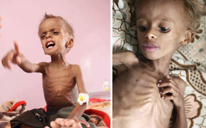 بعد صورة أمل التي هزت العالم...14 مليون يمني عند خط المجاعة وبرنامج الأغذية العالمي سيضاعف مساعدته لتجنب مجاعة واسعة النطاق