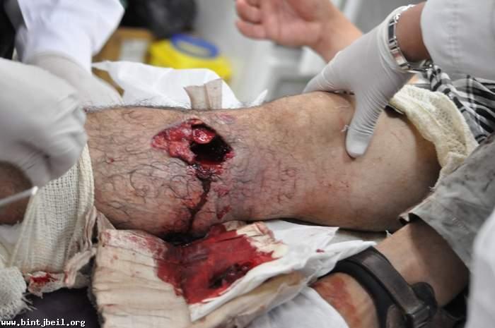 صور الشهداء و الجرحة الذين سقطوا اليوم على الحدود مع فلسطين المحتلة في مارون الراس