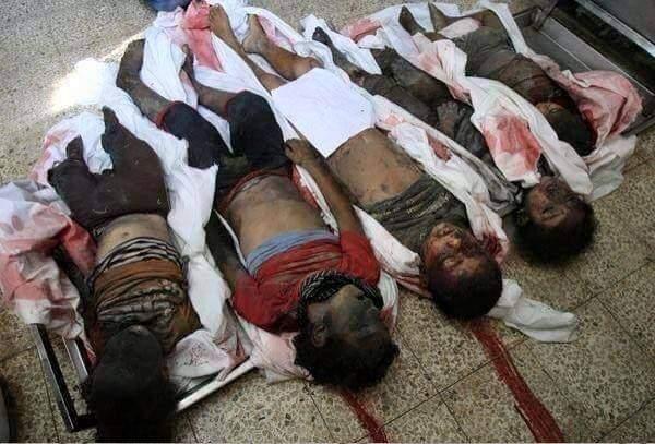 من يردع العدوان السعودي على اليمن ؟