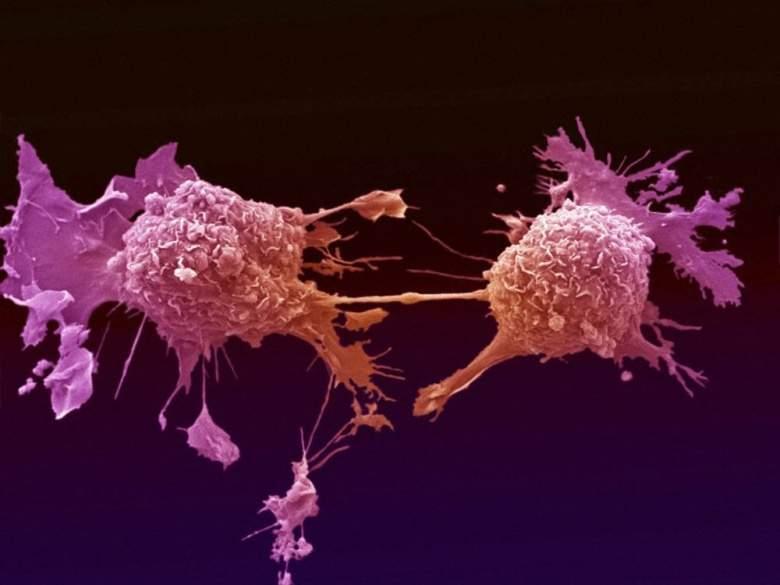 بالفيديو : اليكم مسببات السرطان .. الحقيقة الصاعقة !!