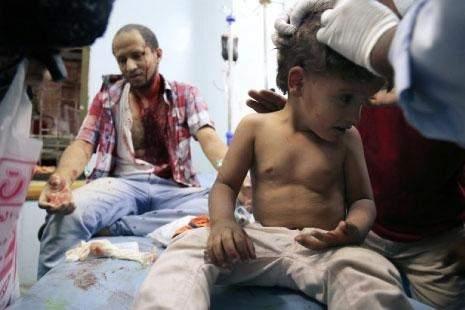 العدوان يواصل مجازره بحق المدنيين/  «أنصار الله» في «مجمع الدفاع السعودي»