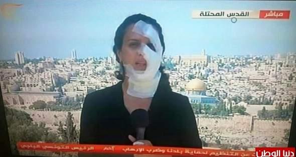 إصابة مراسلة الميادين من قبل قوات الاحتلال الإسرائيلي أثناء تغطية مباشرة  في القدس