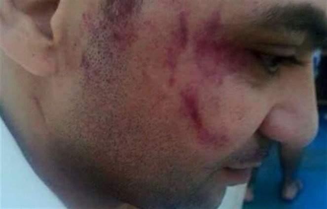 بالفيديو: نائب أردني يعتدي بالضرب على عامل داخل مطعم لبناني في الاردن