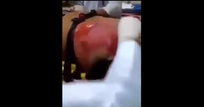 """بالفيديو/ شاهد مصير رجل شرب 24 قنينة """"ريدبول"""""""