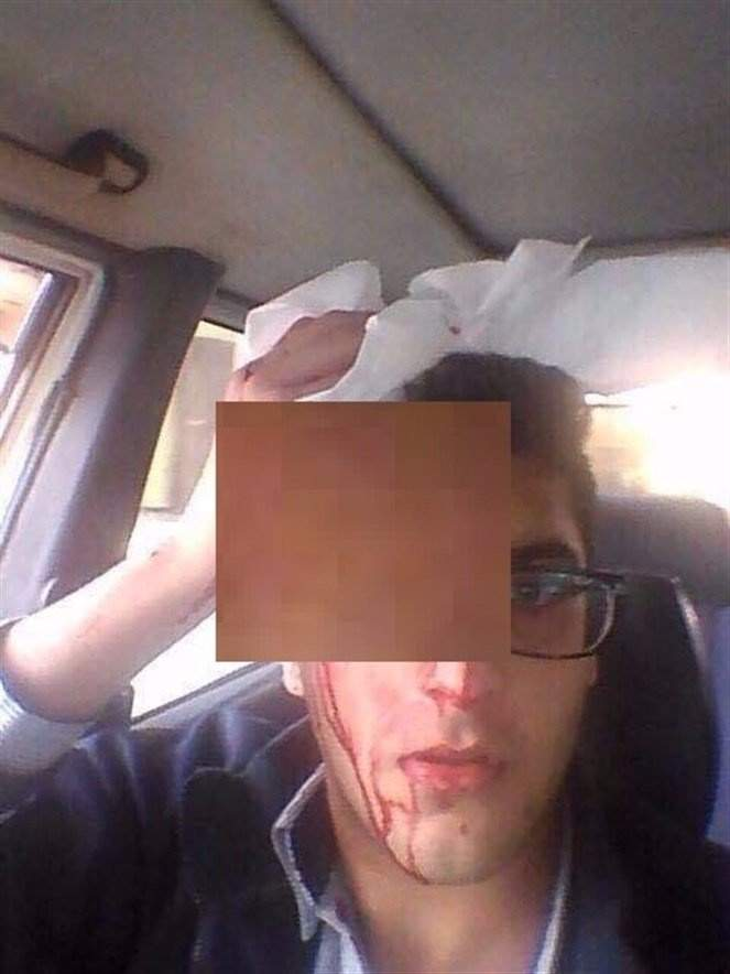"""بالصورة.. ناظر يضرب طالباً بـ """"جرس المدرسة"""" ويصيبه إصابة بالغة!"""