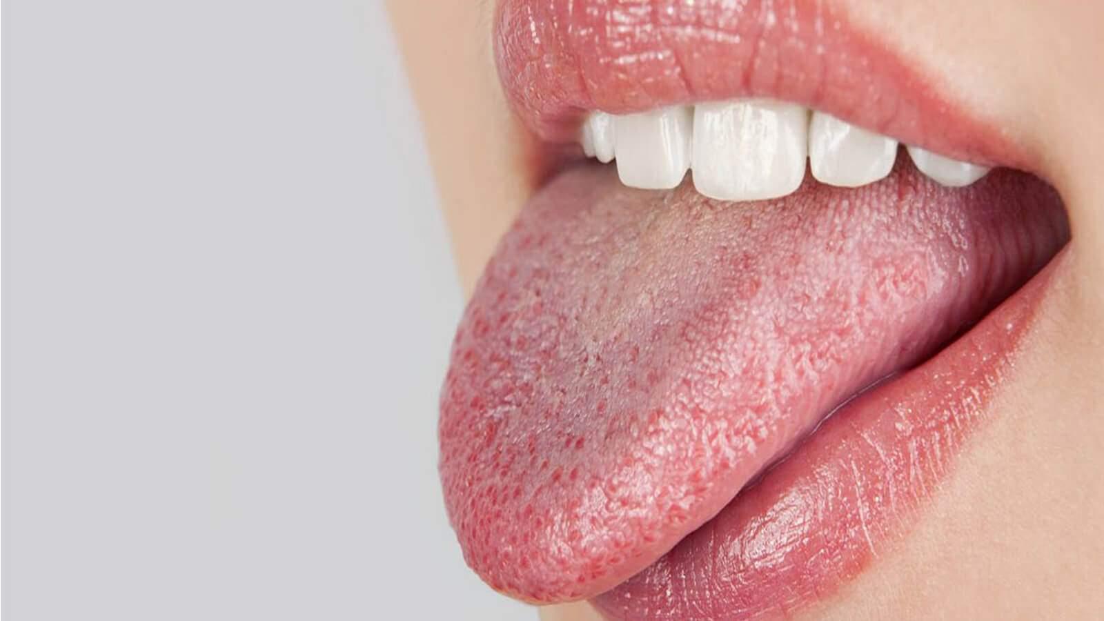 5 حالات صحية تسبب جفاف الفم