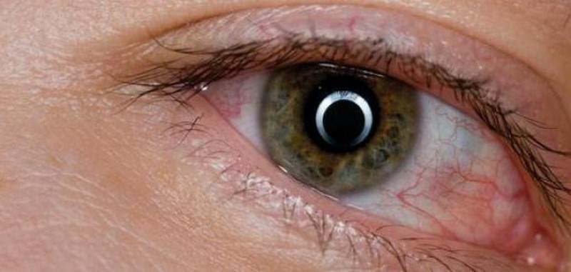 ما أسباب تورم العين؟