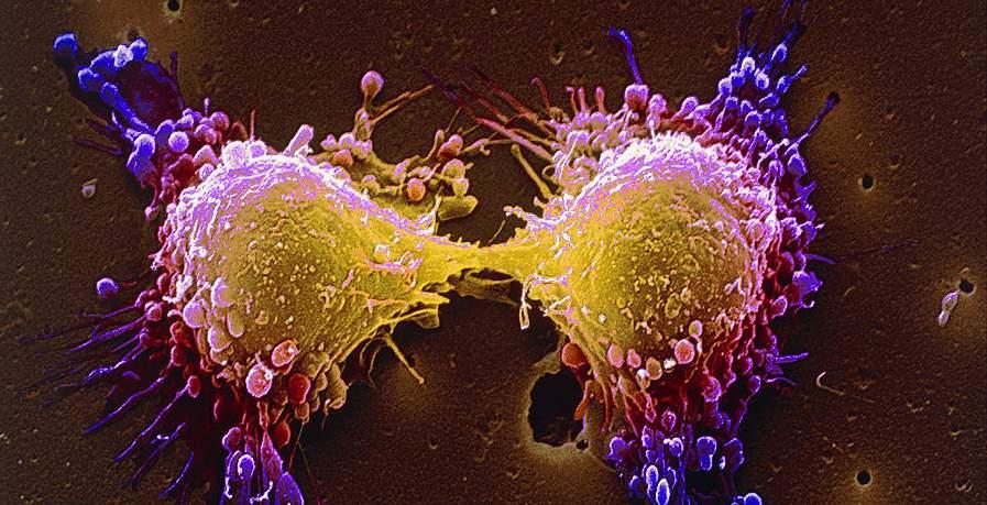 خمسة فحوصات للكشف المبكر عن السرطان