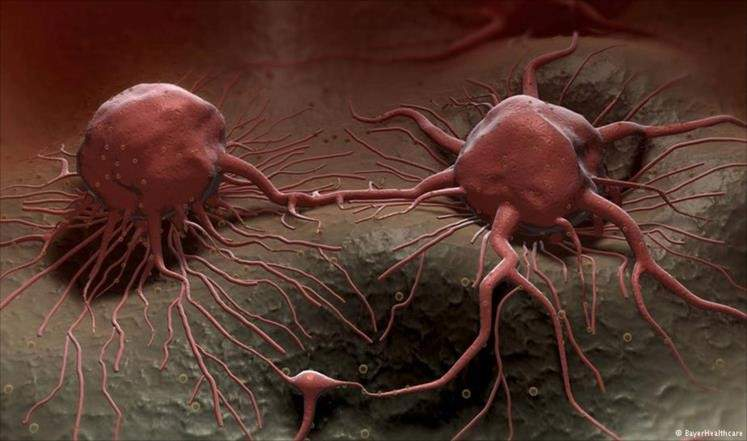 """ألم أقل وفعالية أكبر لأدوية السرطان مع هذه الجسيمات """"الذكية""""!"""