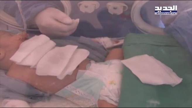 خولة، طفلة تعيش يومها الثامن بقلب خارج جسدها ولا من ينتشلها من براثن الموت !