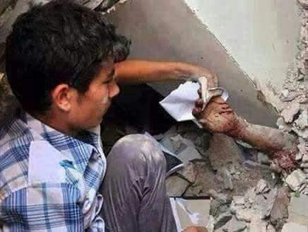 """اليمن: """"طفل يمني يمسح الدم عن يد امه"""""""