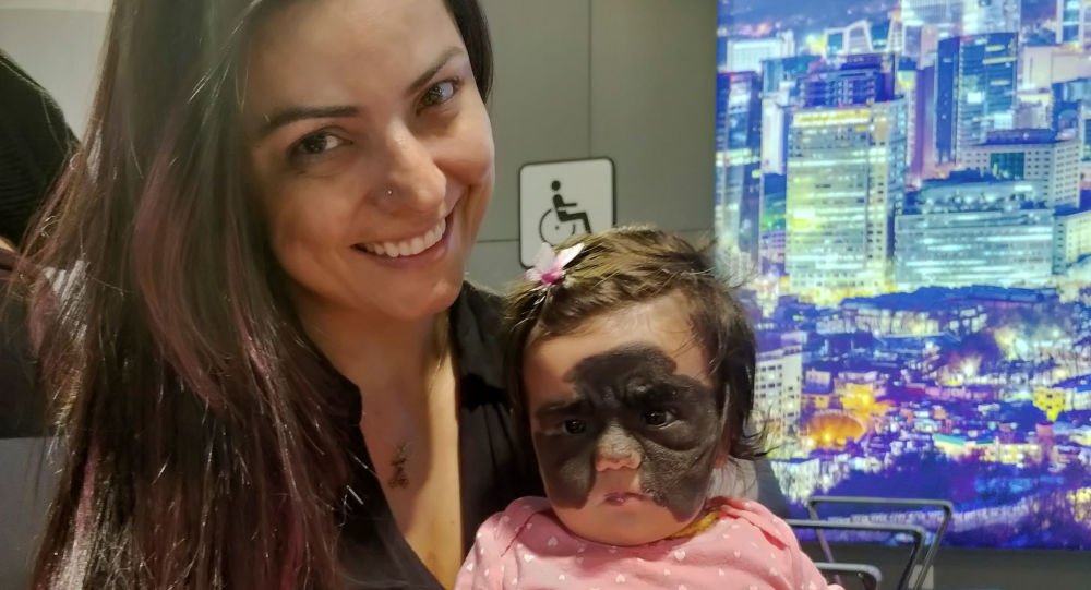وحمة غريبة وكبيرة على وجه طفلة أميركية تحير الأطباء في الولايات المتحدة