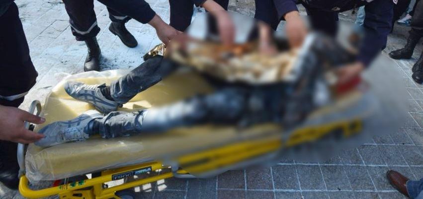 شاب سوري يضرم النار بنفسه  في بلدة الخيام بعد خلافات مع خطيبته!