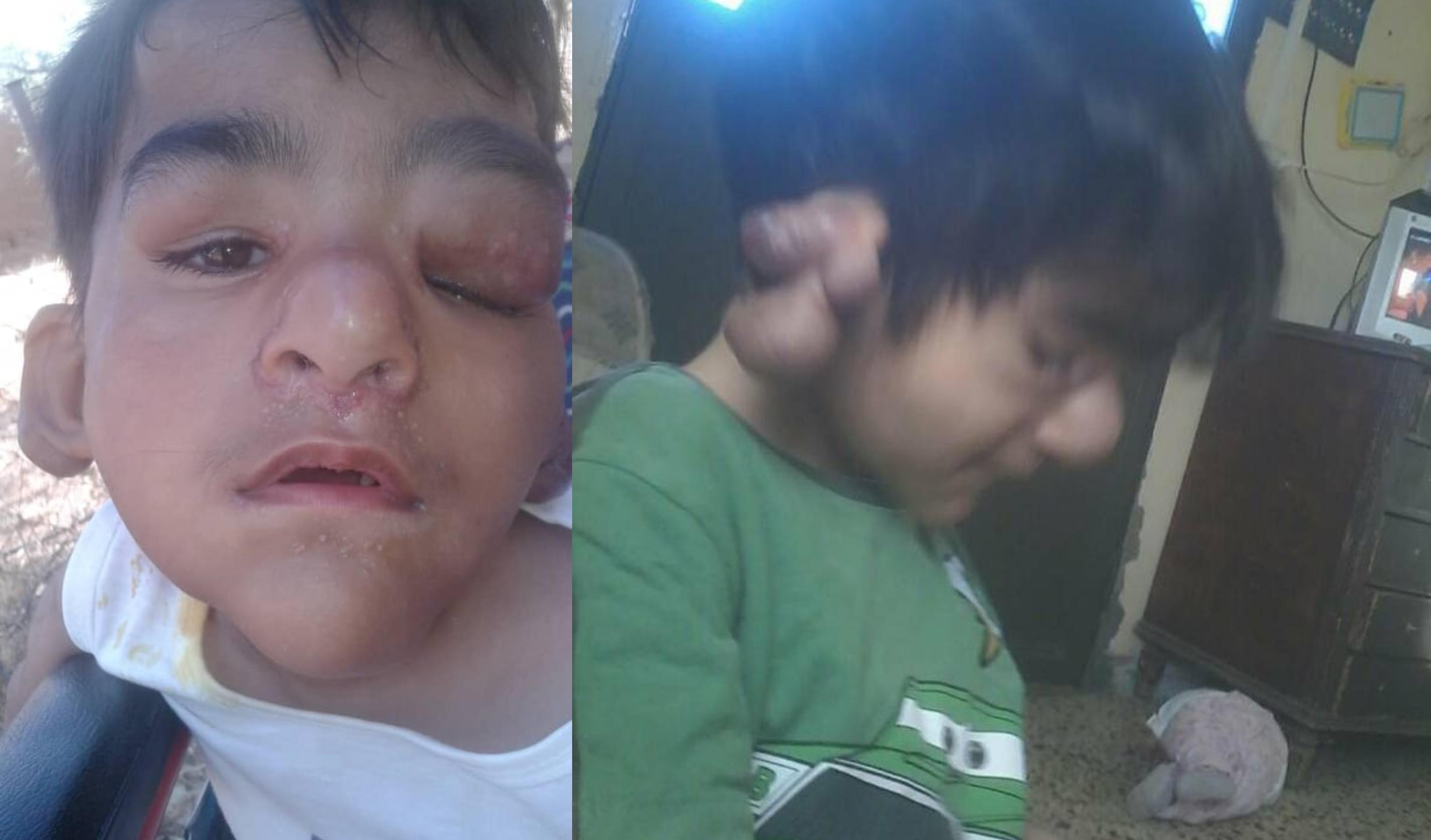 7 أشخاص حول العالم فقط مصابون به...مرض نادر جدا أصاب الطفل أحمد ابن الـ7 سنوات من بلدة شحيم من بين مئة مليون وقد يؤدي إلى استئصال أذنيه