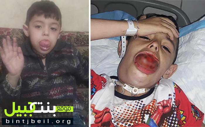 """هل تذكرون الطفل محمد العوطة؟ بعد أكثر من عملية جراحية...حالته الصحية تتأزم ولا يزال حبل خلاصه علاج في أستراليا لكن العائق """"مادي"""""""