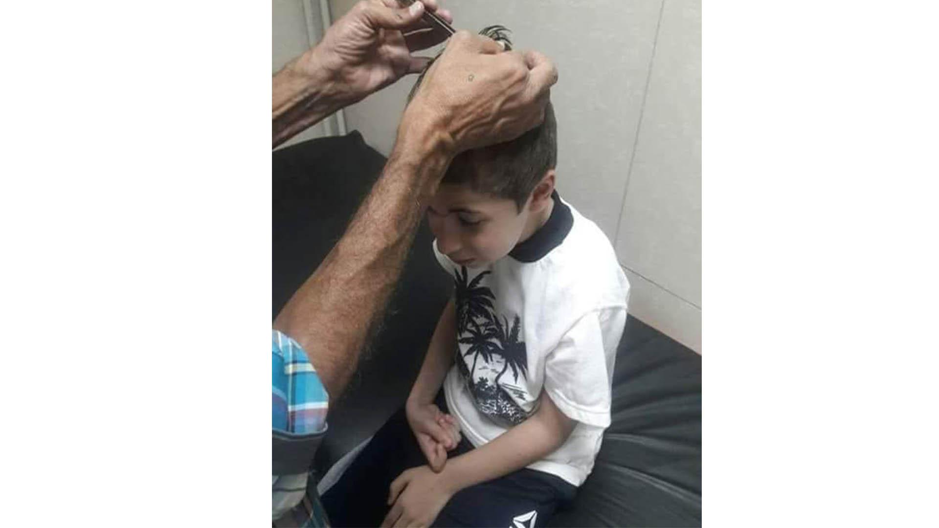 """بالصور/ على جسده آثار كدمات وفي رأسه نزيف .. """"علي"""" تعرض لضرب مبرح من معلمته في إحدى المدارس السورية"""