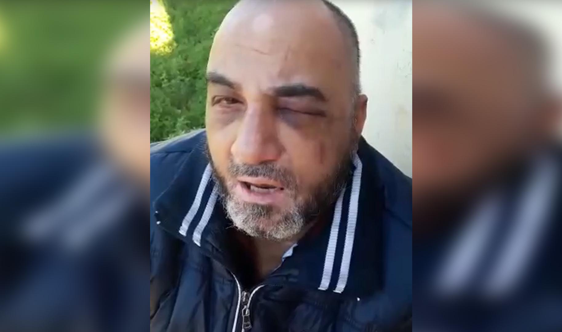 بالفيديو المؤسف..اعتداء وحشي على مواطن لبناني.. ذهب للمخفر لرفع شكوى فتم سجنه!