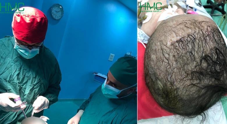 نجاح عملية دقيقة في الدماغ لرضيعة لم تتجاوز الأربعة أشهر...إنجاز للدكتور وضاح قبيسي