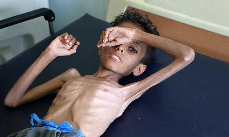 """""""65 ألف شخص يعانون أحوالاً غذائية كارثية والعدد قد يزيد إلى 237 ألفاً""""... اليونيسيف: الظروف المعيشية لأطفال اليمن تجلب العار على البشرية!"""